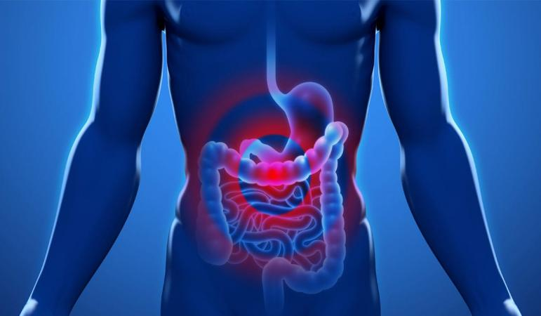 Every Thing About Gastric Ulcers Treatment and Prevention
